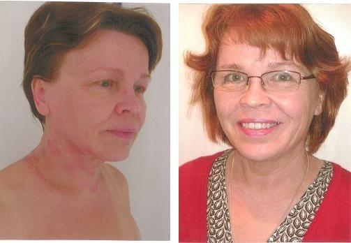 Ms. P.M. Before (left) and After (right) acupuncture and Chinese herbal medicine treatment at AcuMedic Centre for Eczema and seasonal allergies.